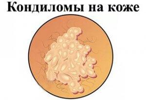 Лечение остроконечных кондилом у женщин