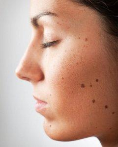 Почему возникает шишка на внутренней стороне губы?
