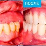 Нейлоновые зубные протезы: отзывы пациентов и стоматологов. Плюсы и минусы