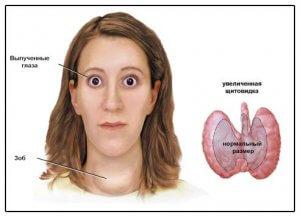 Описание болезни