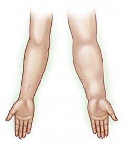 Лечение лимфостаза