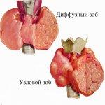 Диффузно токсический зоб: диагностика, профилактика, питание