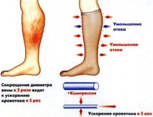 Виды лимфостаза