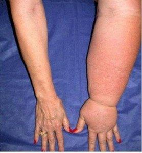 Причины лимфостаза