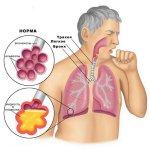 Что такое пневмония легких, как развивается. Необходимо лечение